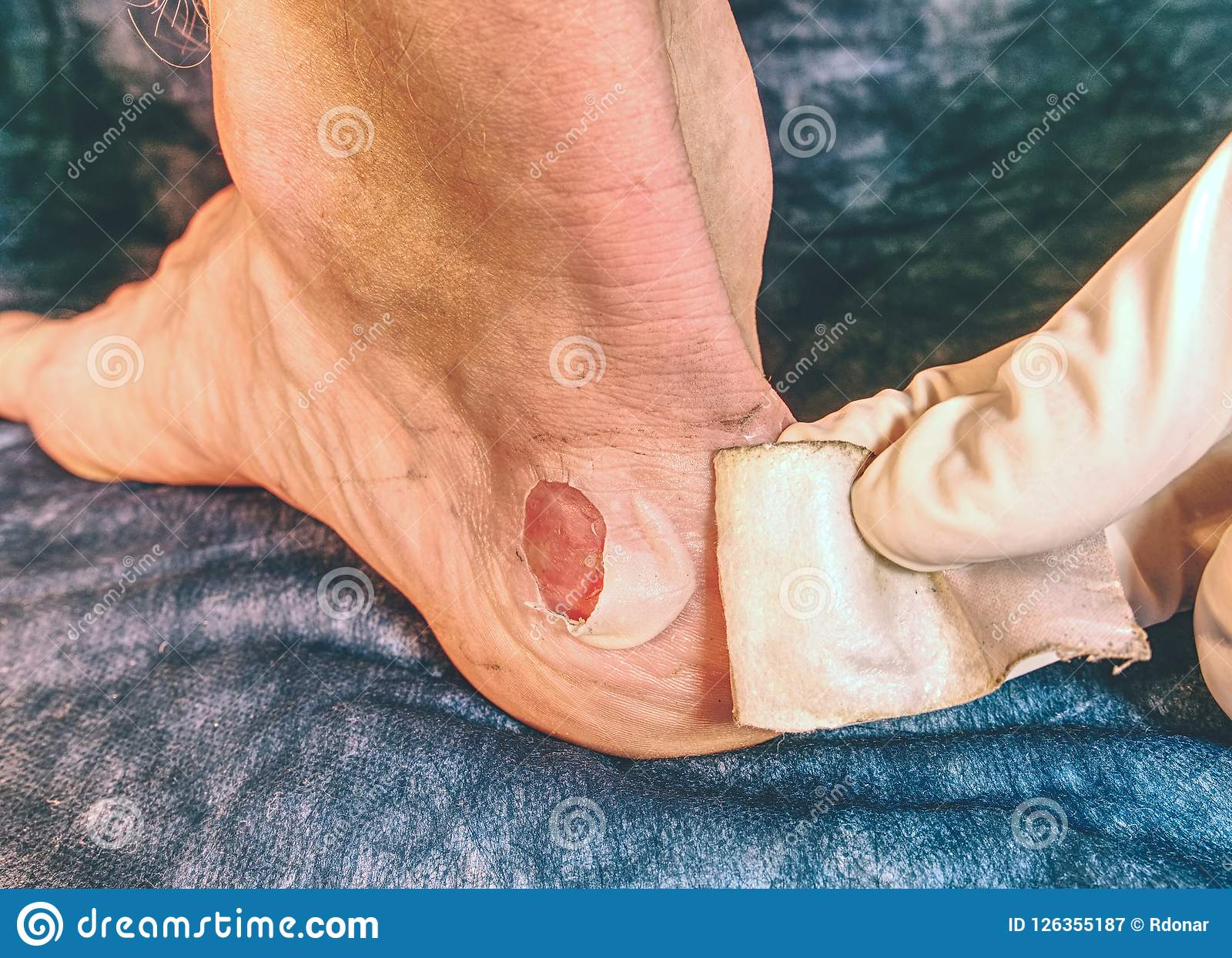 MMedical Treatment Of Dead Skin And Wet Abrasions On The