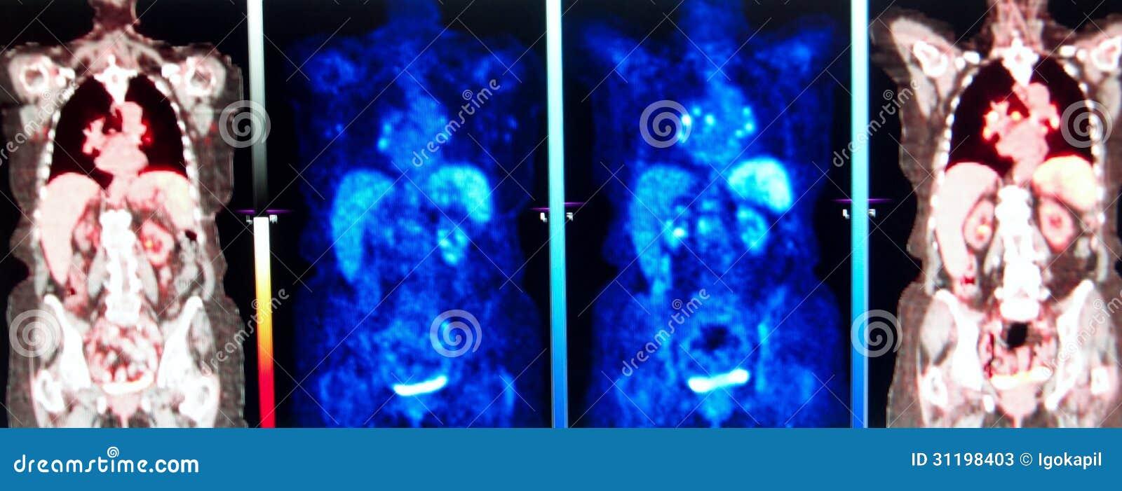 Medicina nuclear de la serie de Pet/ct