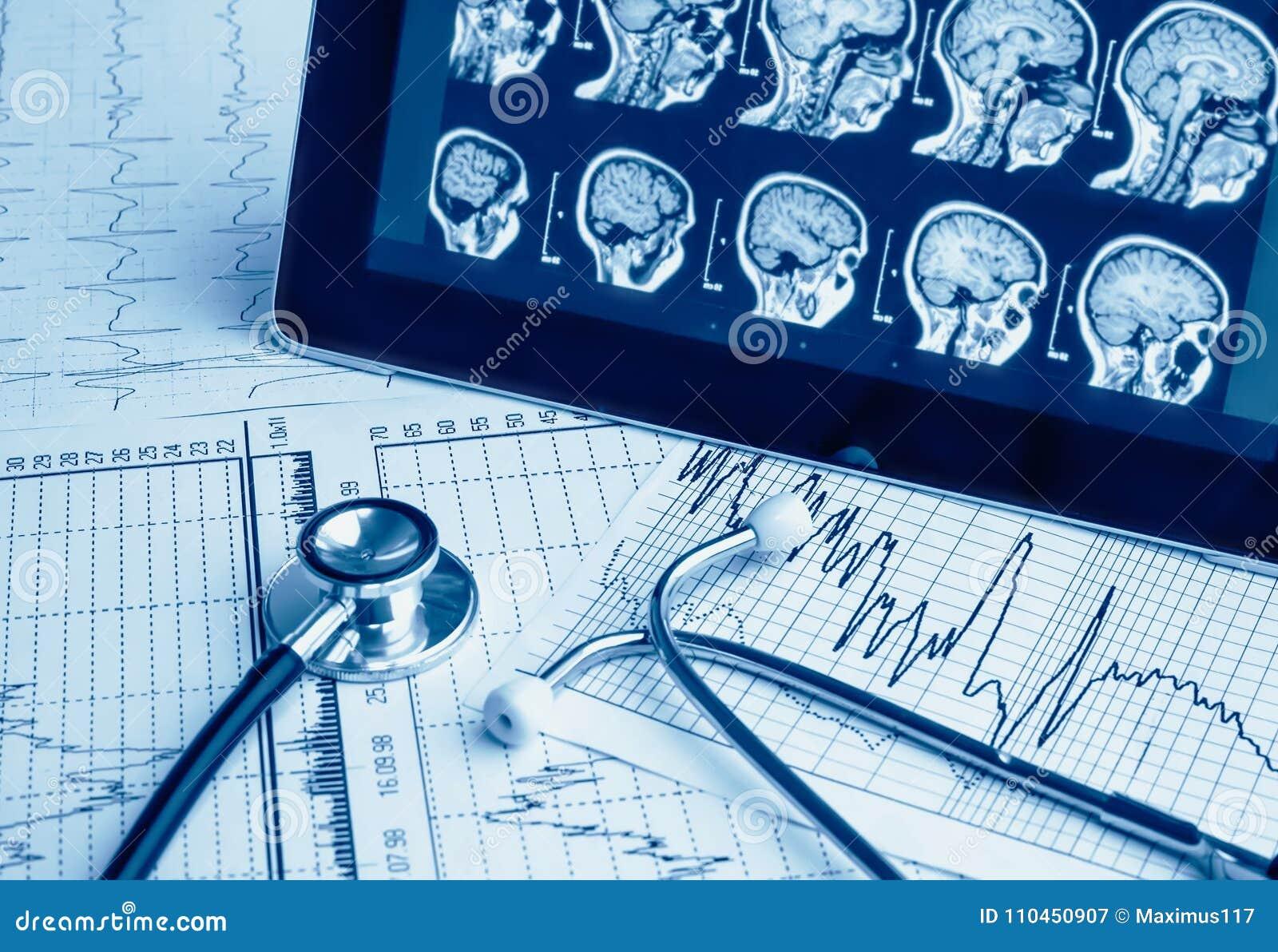 Medicinska hjälpmedel Stetoskop och kardiogram på en tabell