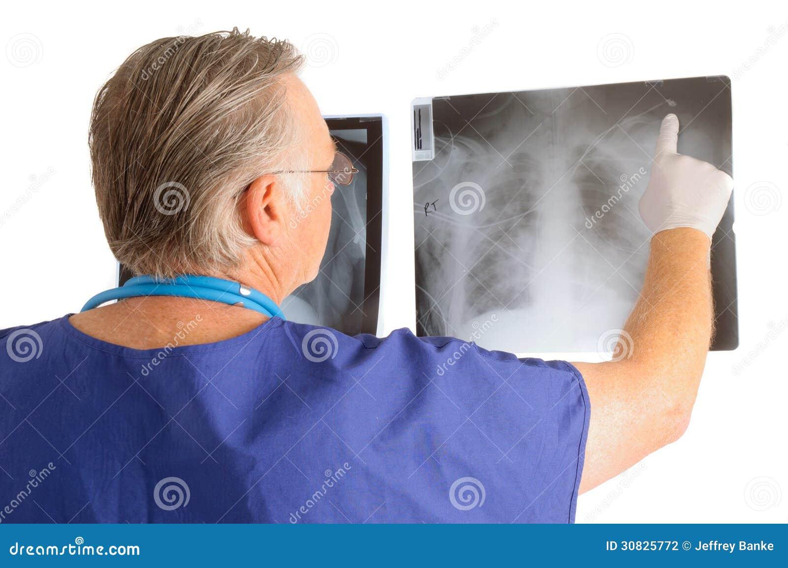 Medico che studia i raggi x