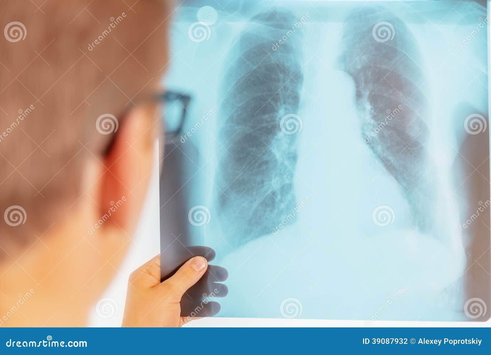 Medico esamina l immagine dei raggi x dei polmoni