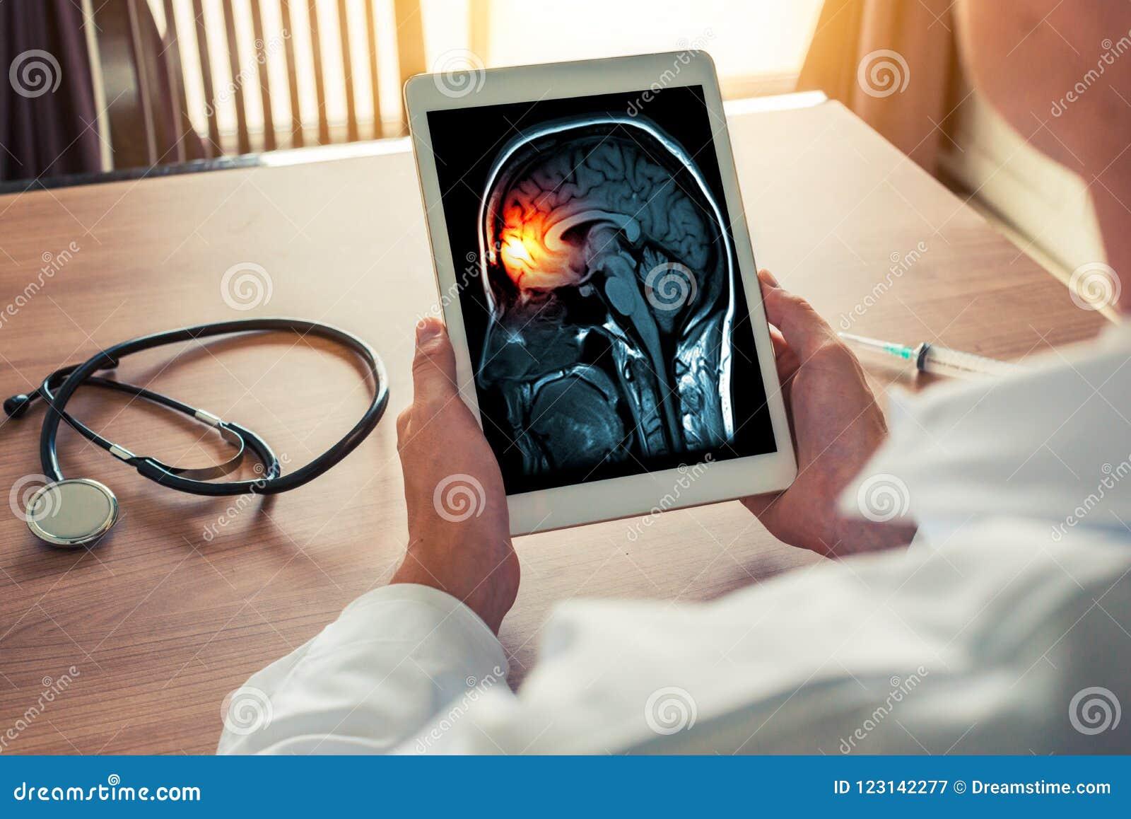 Medique guardar uma tabuleta digital com raio X do esqueleto do cérebro e do crânio Conceito da dor de cabeça, da meningite e da
