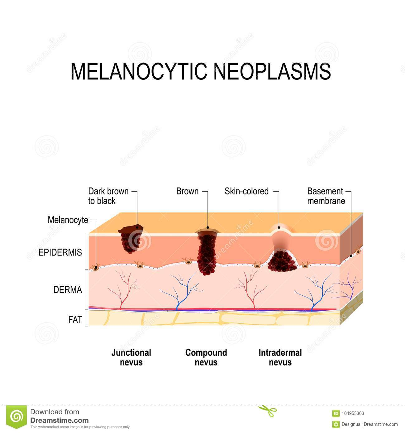 Melanocytic nevus difference between a birthmark mole and nevus download comp ccuart Images