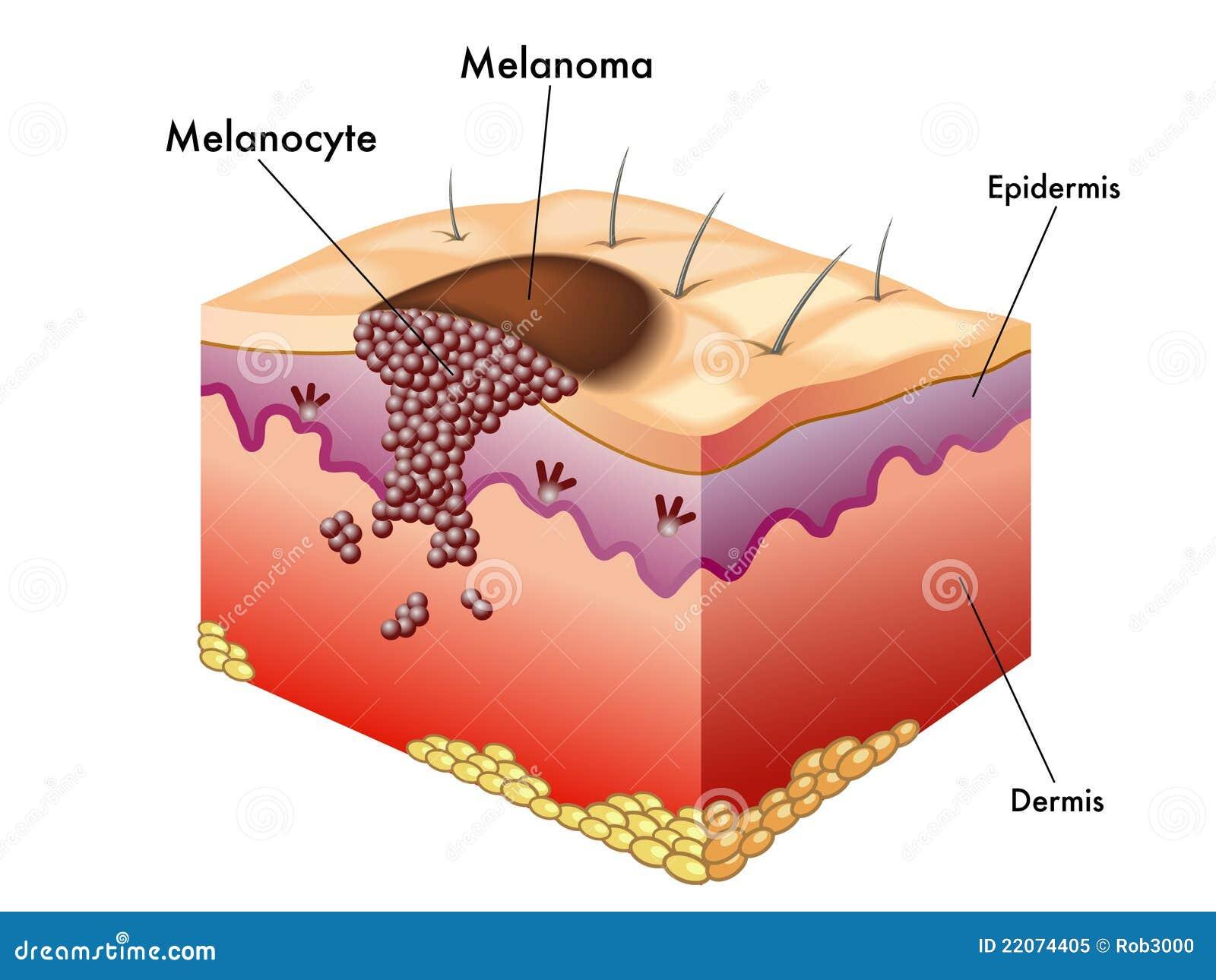 Melanoma Cartoons Illustrations Amp Vector Stock Images