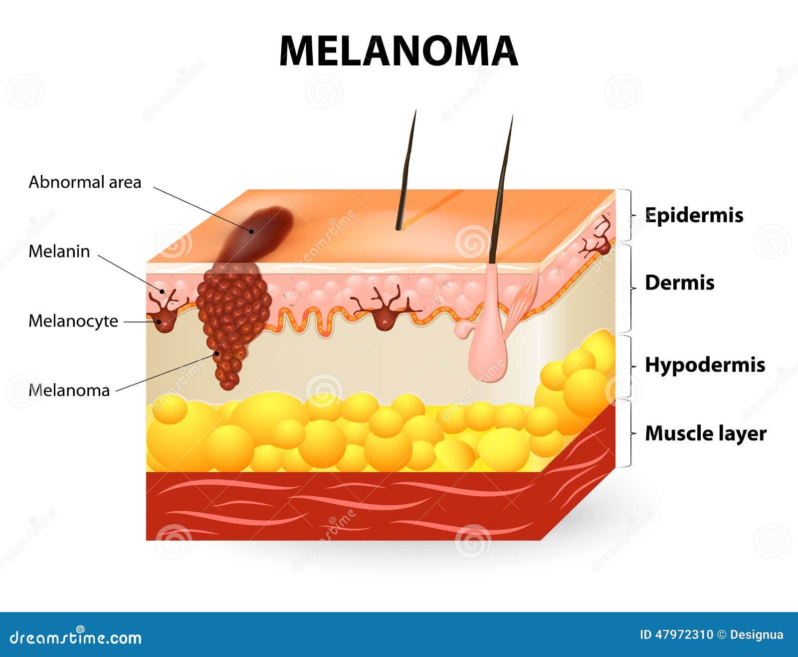 Melanoma ou câncer de pele