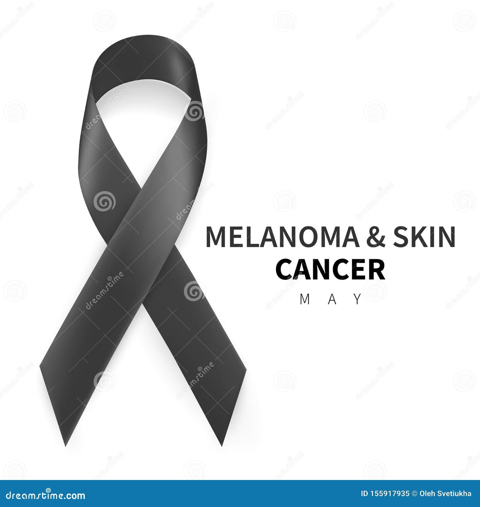 Melanoma and Skin Cancer Awareness Month. Realistic Black ribbon symbol. Medical Design. Vector illustration