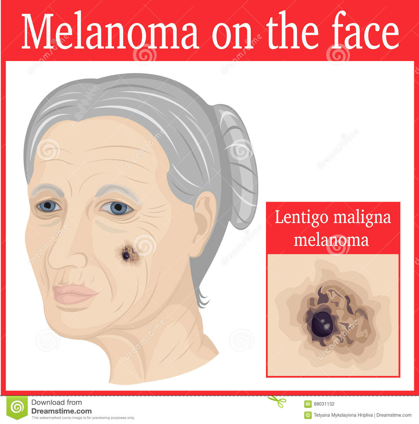 A causa di pelle grossa nota sulla faccia