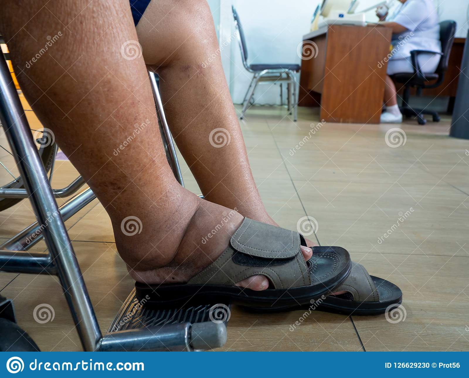 Men With Diabetes And Kidney Disease With Swelling Feet Can Not