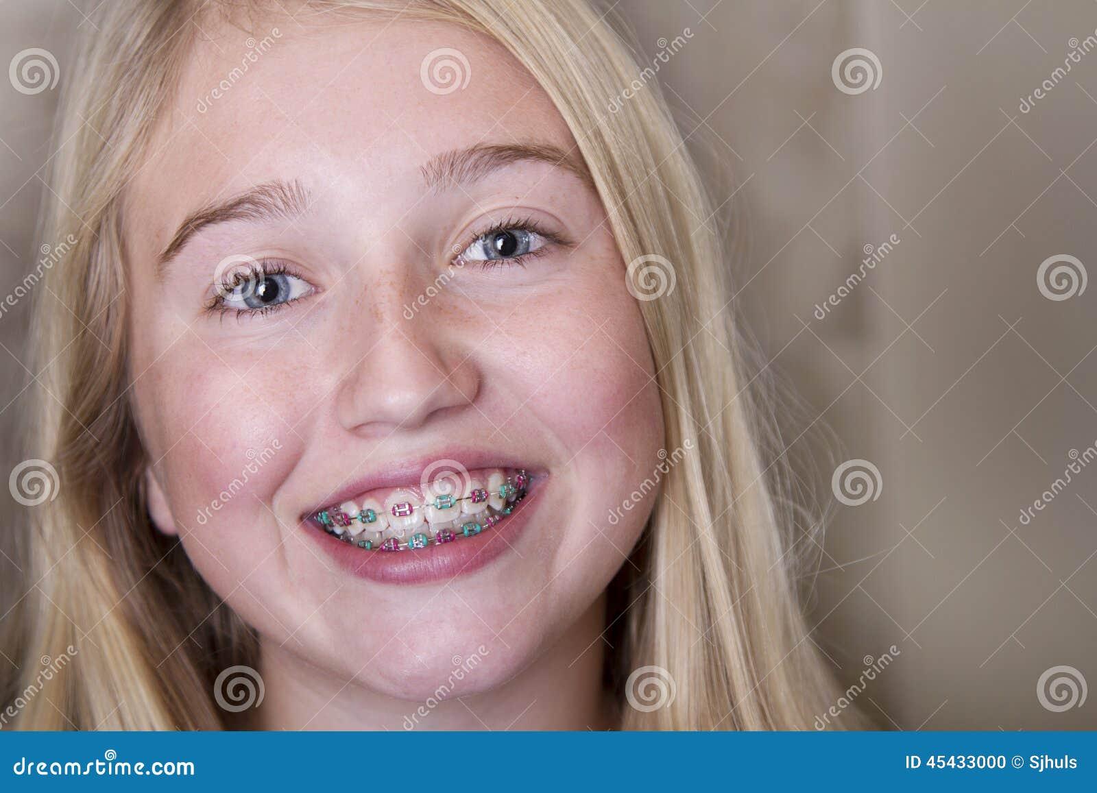 Menina adolescente com as cintas em seus dentes