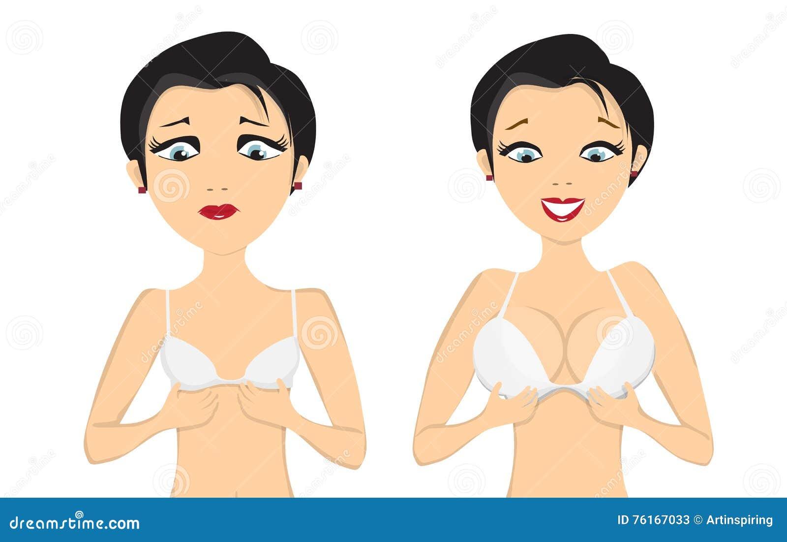 Menina antes e depois do aumento do peito