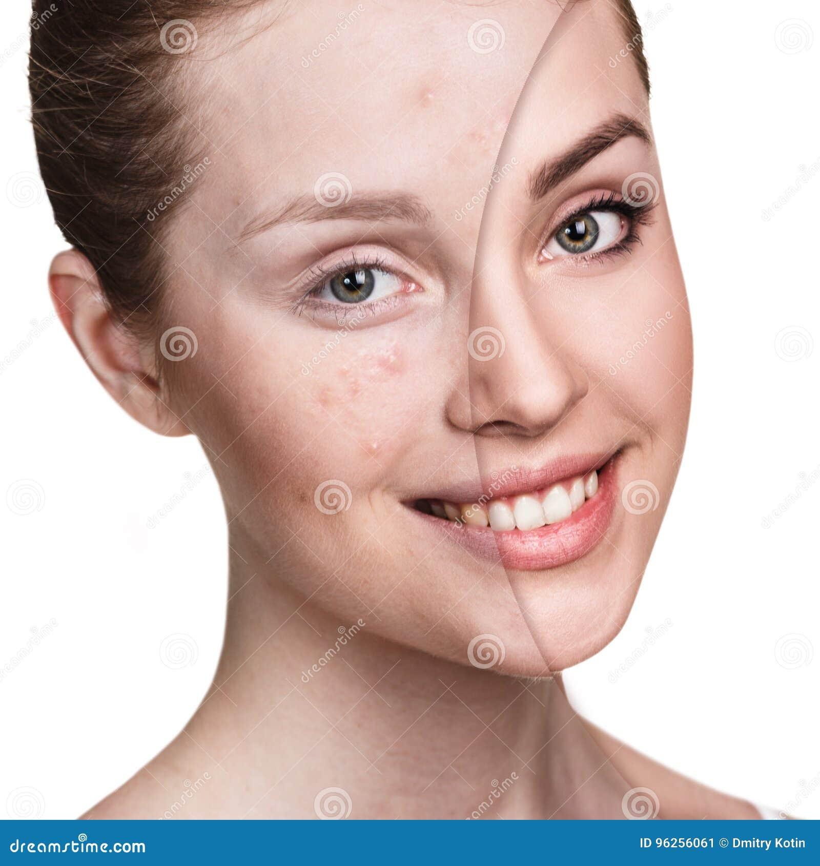 Menina com acne antes e depois do tratamento