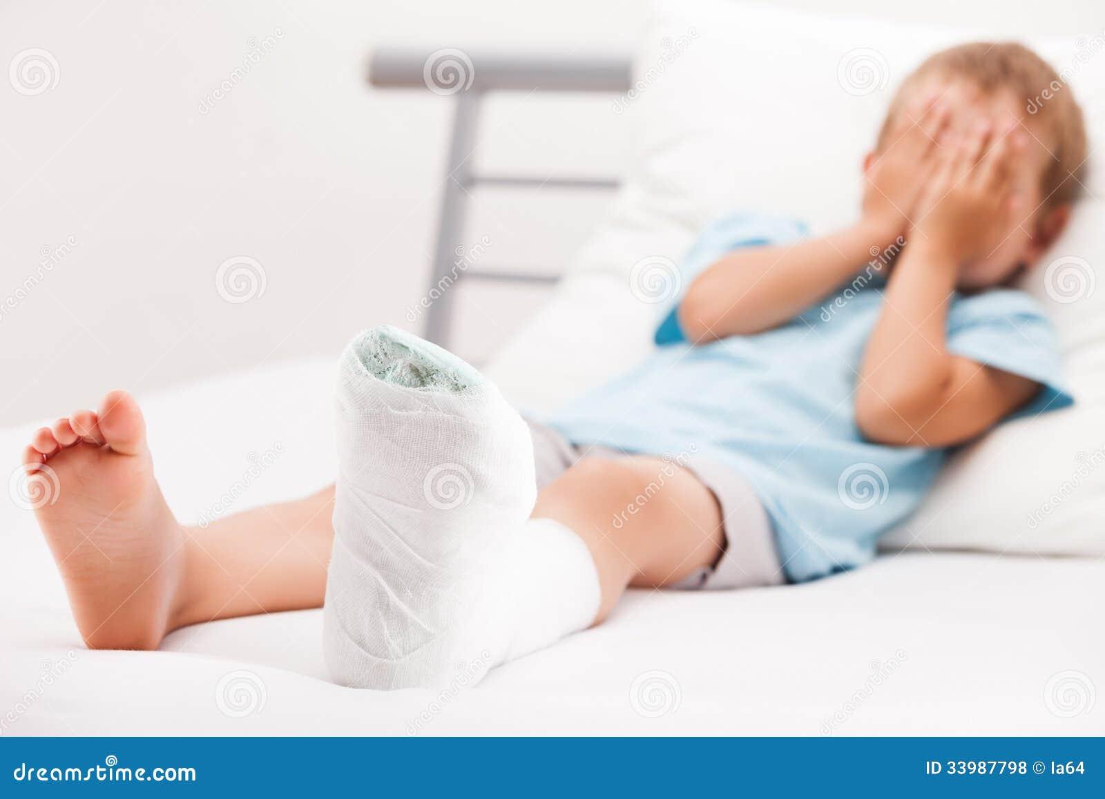 Menino da criança pequena com a atadura do emplastro na fratura ou no Br do salto do pé