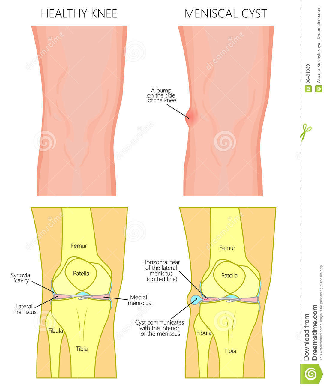 Meniscus _Meniscal Cyst Front View Stock Vector - Illustration of ...