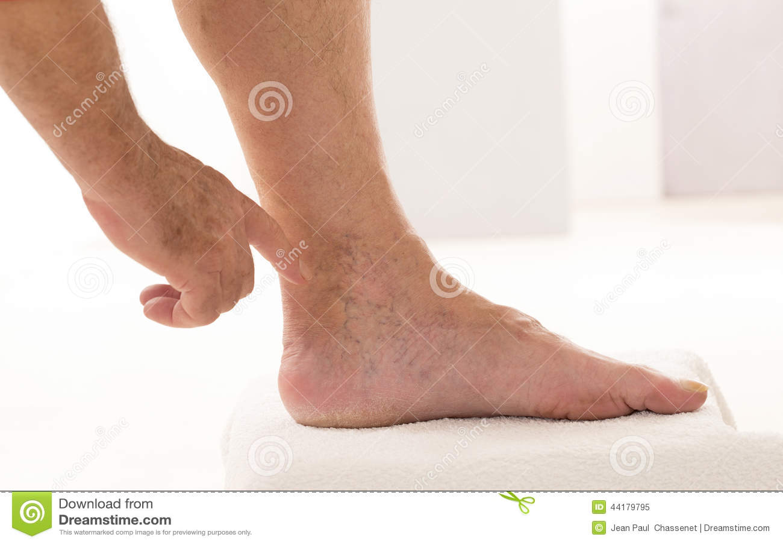spataderen voet