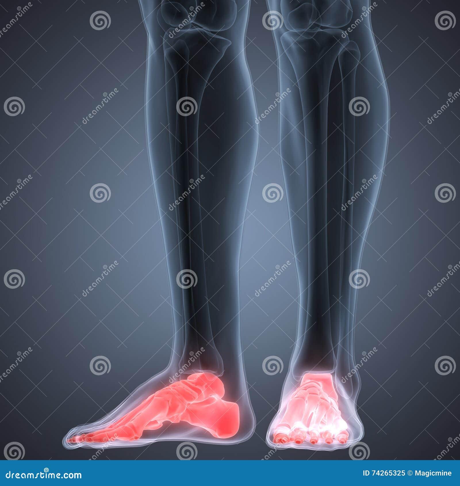 Menschliche Bein-Fuß-Gelenkschmerzen Stock Abbildung - Illustration ...