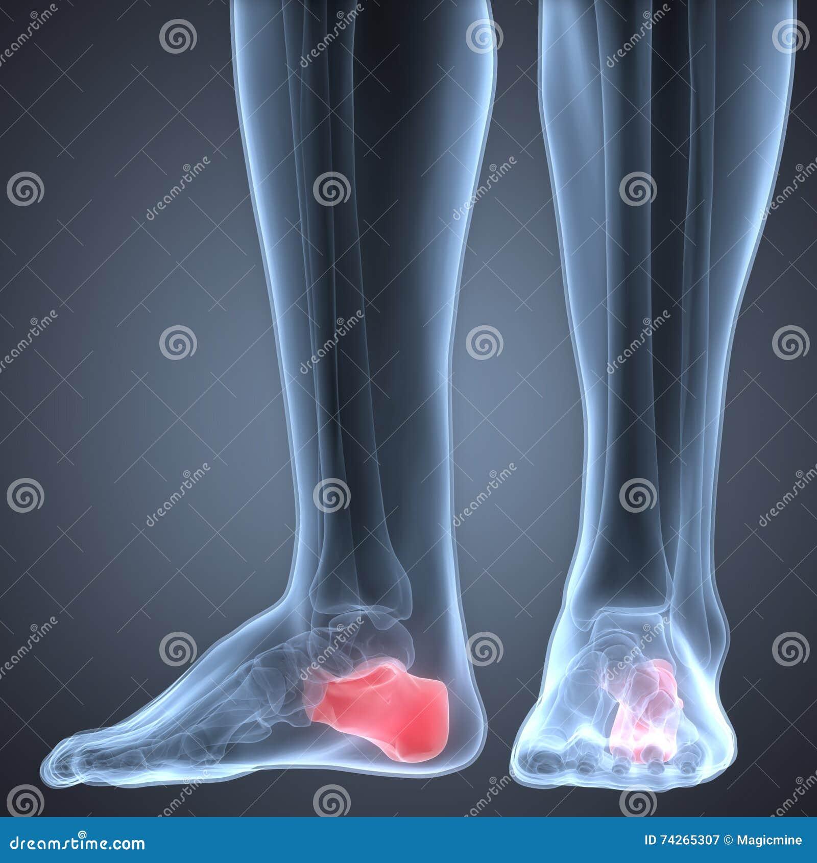 Menschliche Bein-Gelenkschmerzen (Calcaneus-Knochen) Stock Abbildung ...
