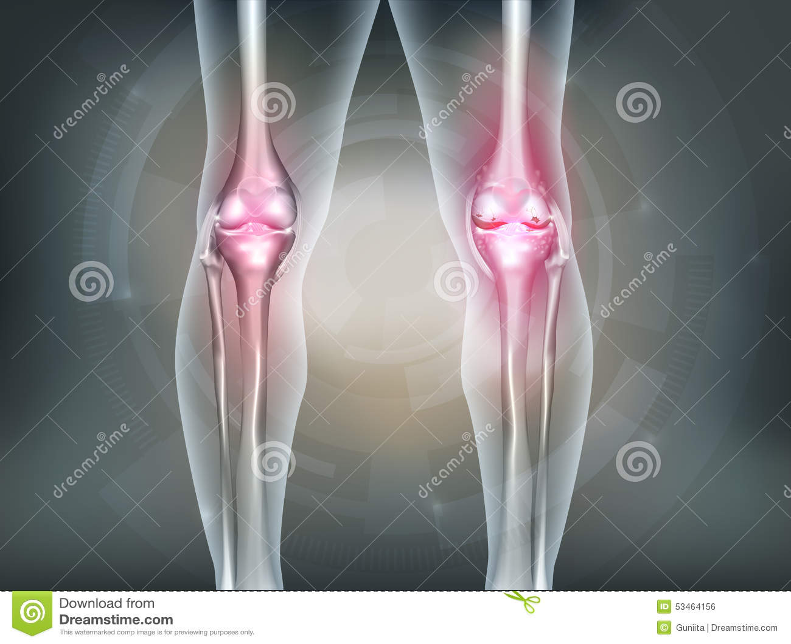 Menschliche Beine Und Kniegelenk Vektor Abbildung - Illustration von ...