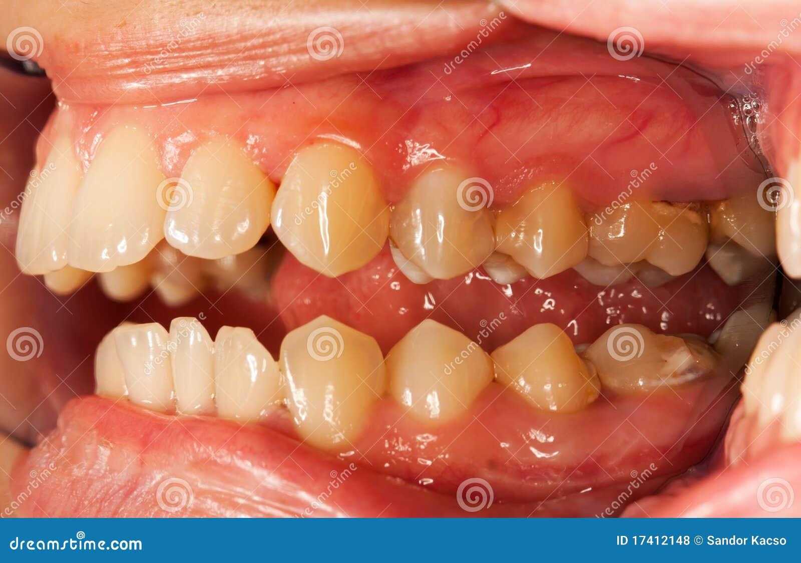 Menschliche Zähne stockfoto. Bild von gummis, gesundheit - 17412148