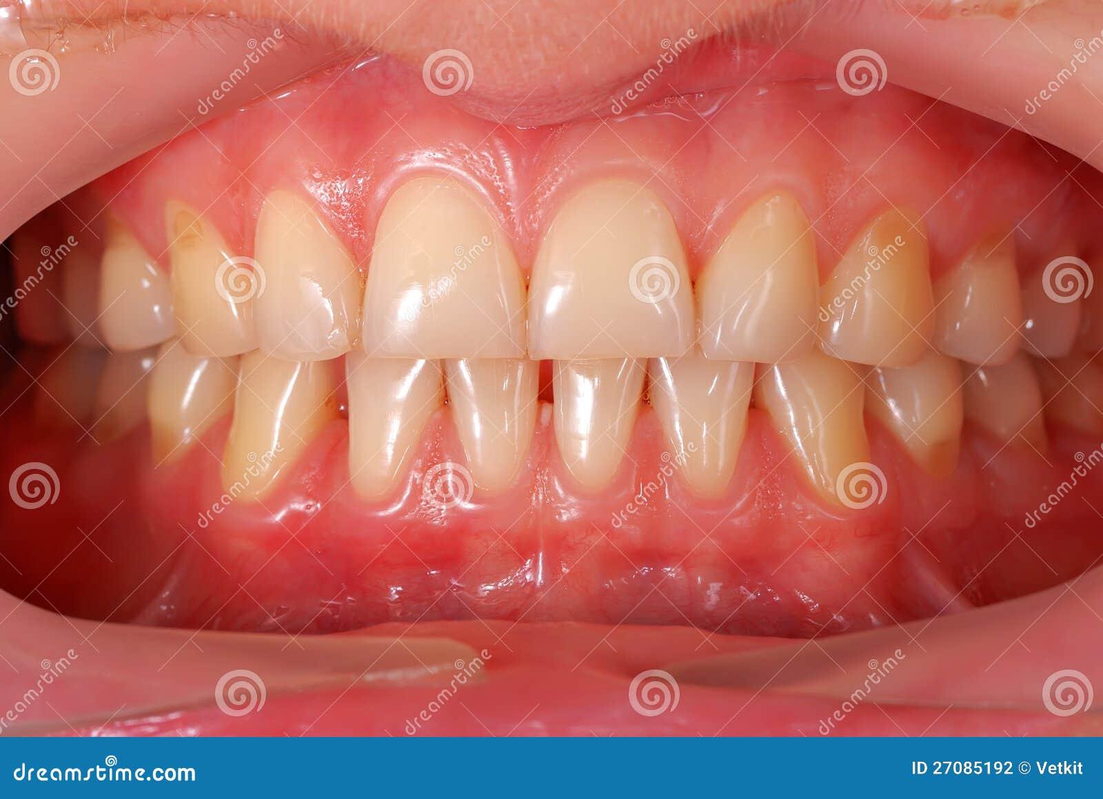 Menschliche Zähne