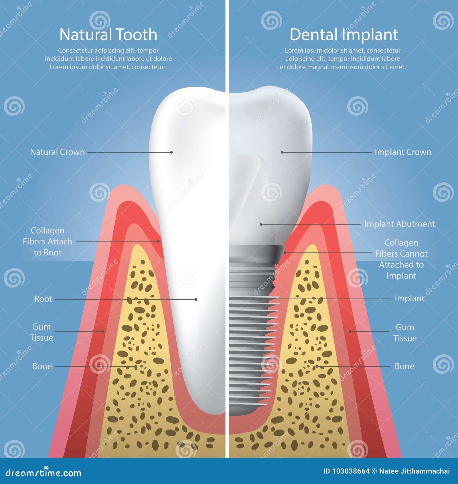 Menschliche Zähne Und Zahnimplantat Vektor Abbildung - Illustration ...