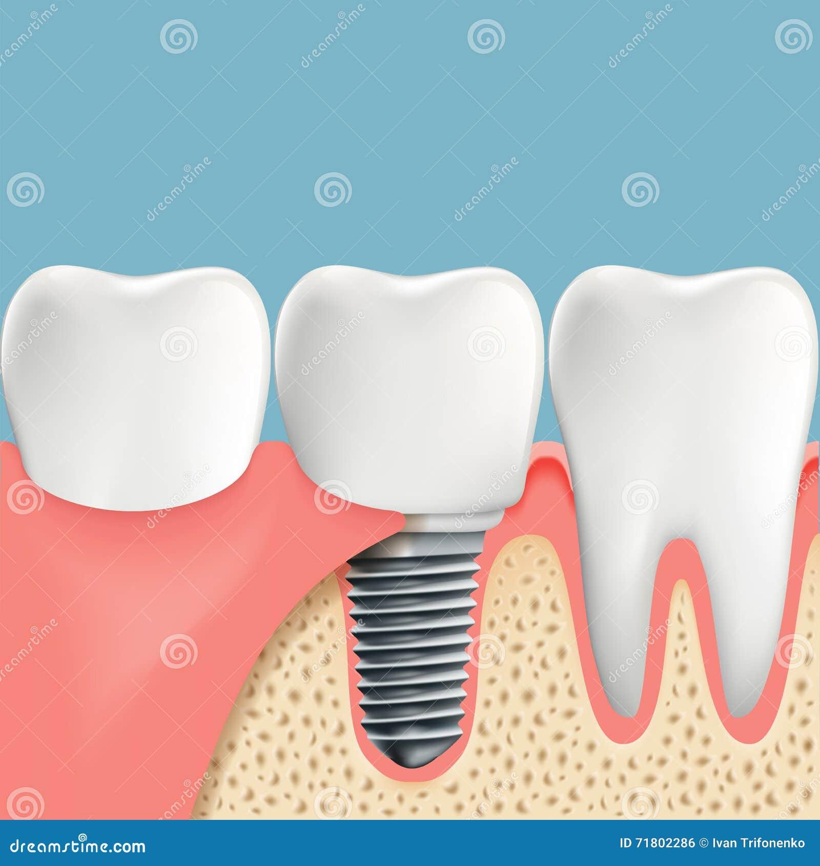 Menschliche Zähne Und Zahnimplantat Anatomie Der Mundhöhle Stoc ...