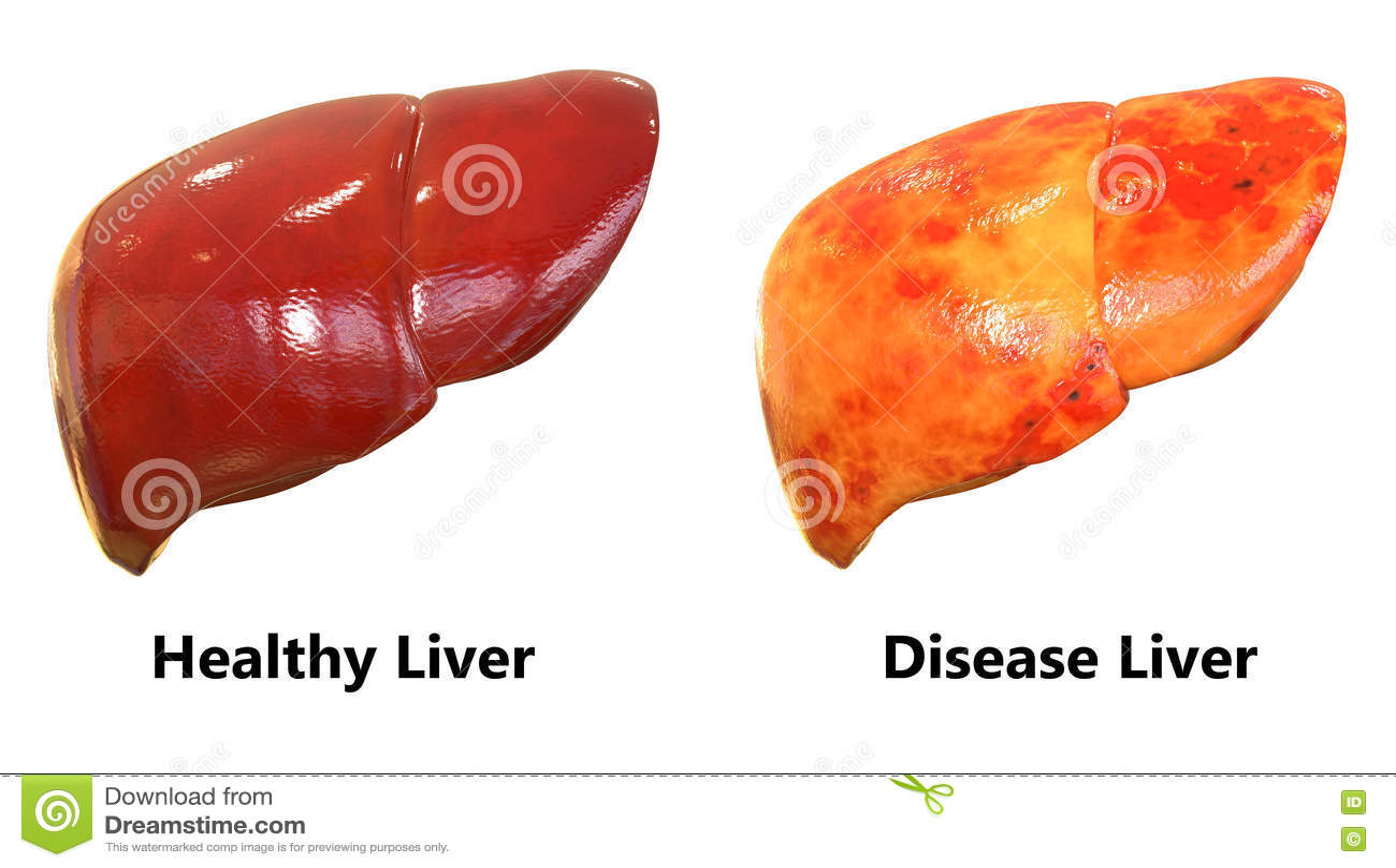 Menschlicher Körper-Organ-Leber-Anatomie Stock Abbildung ...
