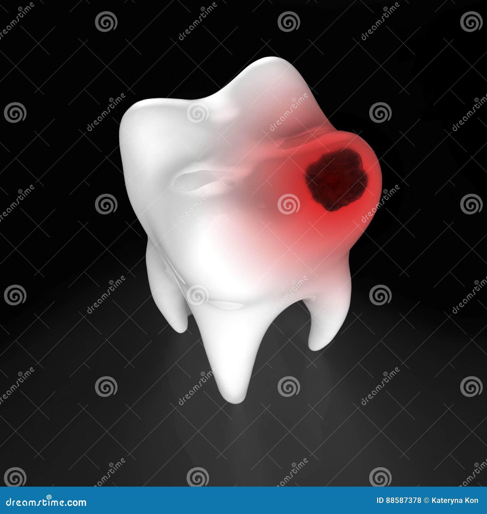 Menschlicher Zahn Mit Schwarzem Loch Stock Abbildung - Illustration ...