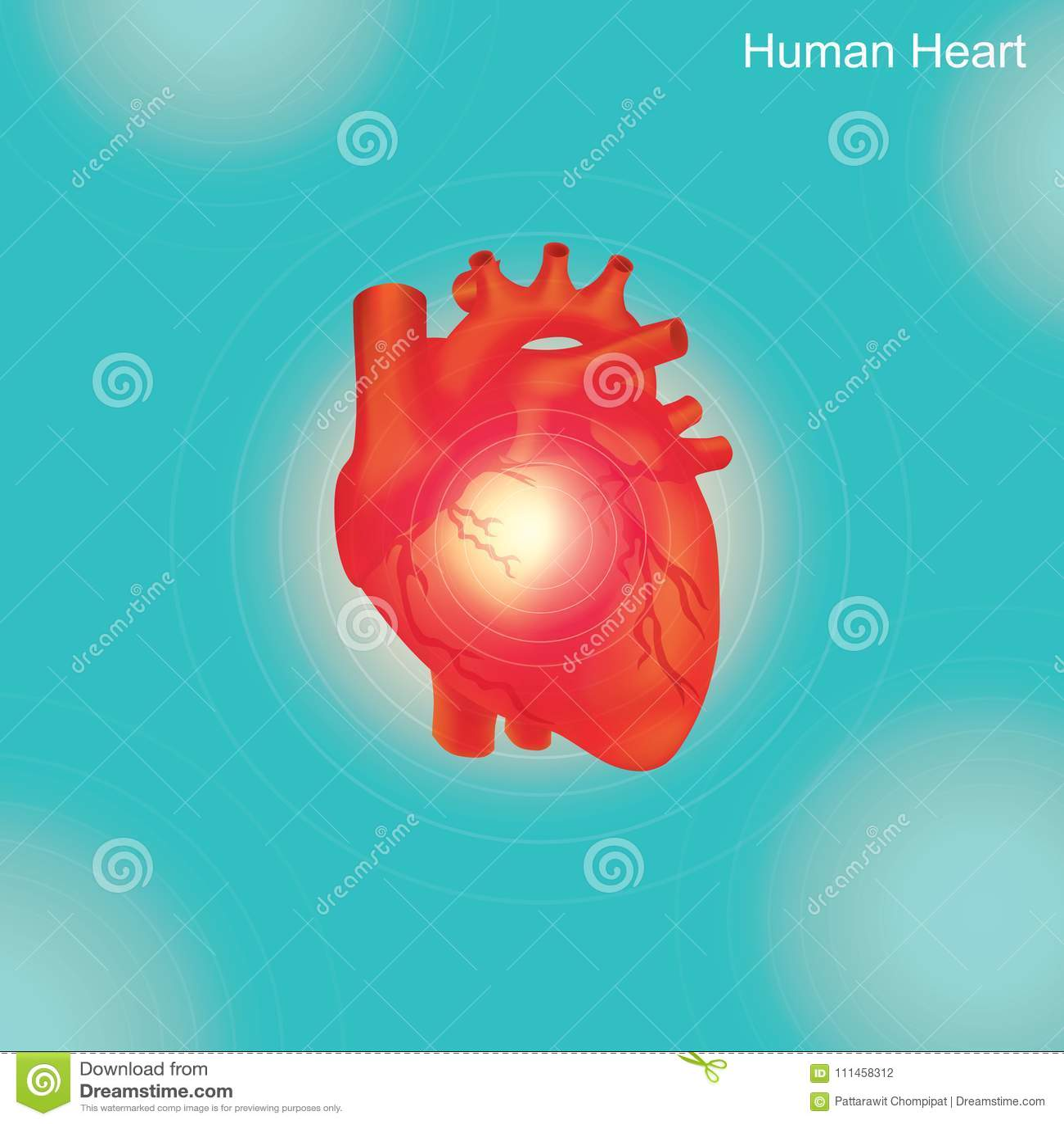 Menselijk hart Angioplasty is een endovascular procedure om versmald te verwijden of ob