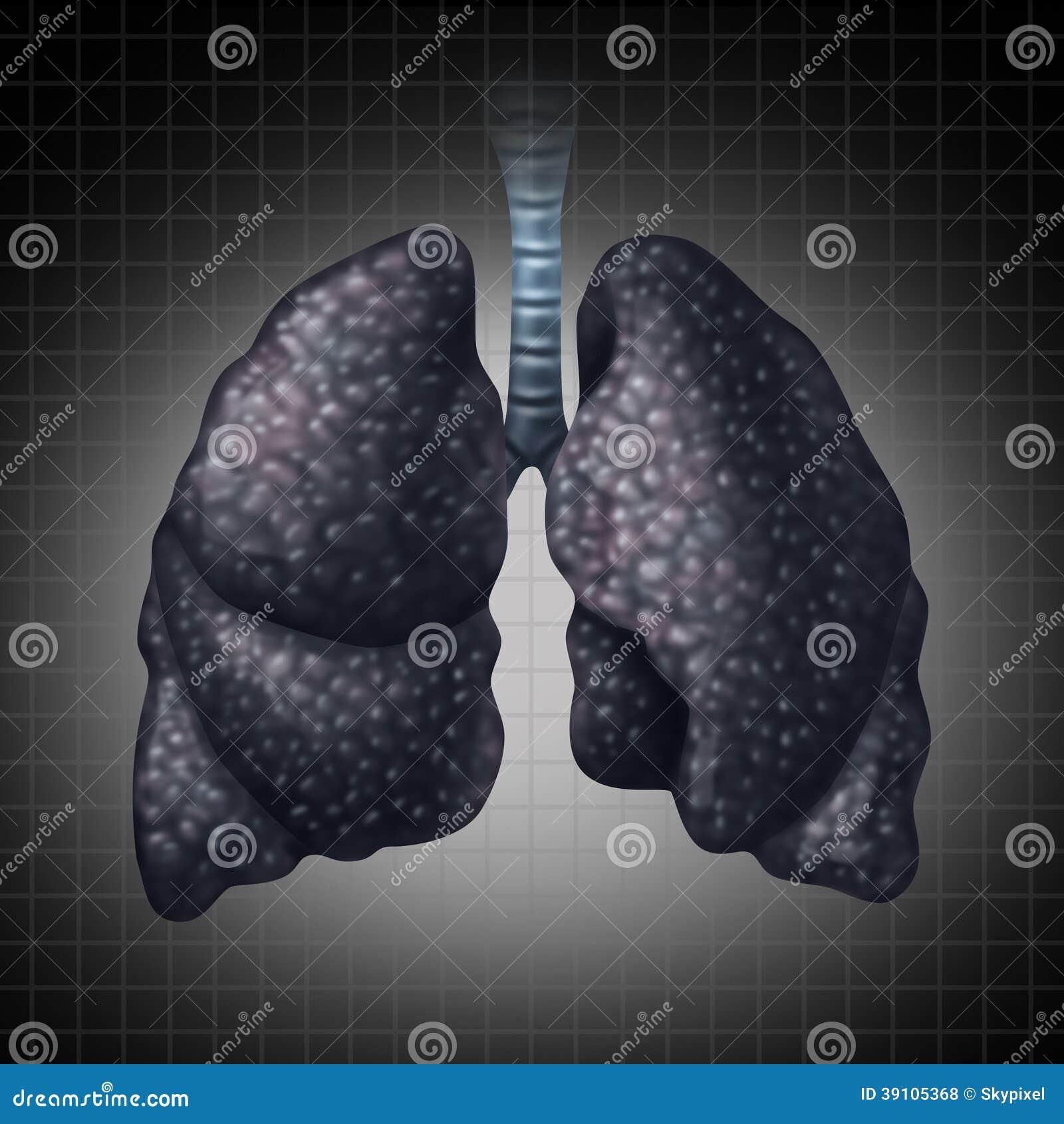 Menselijk Lung Disease
