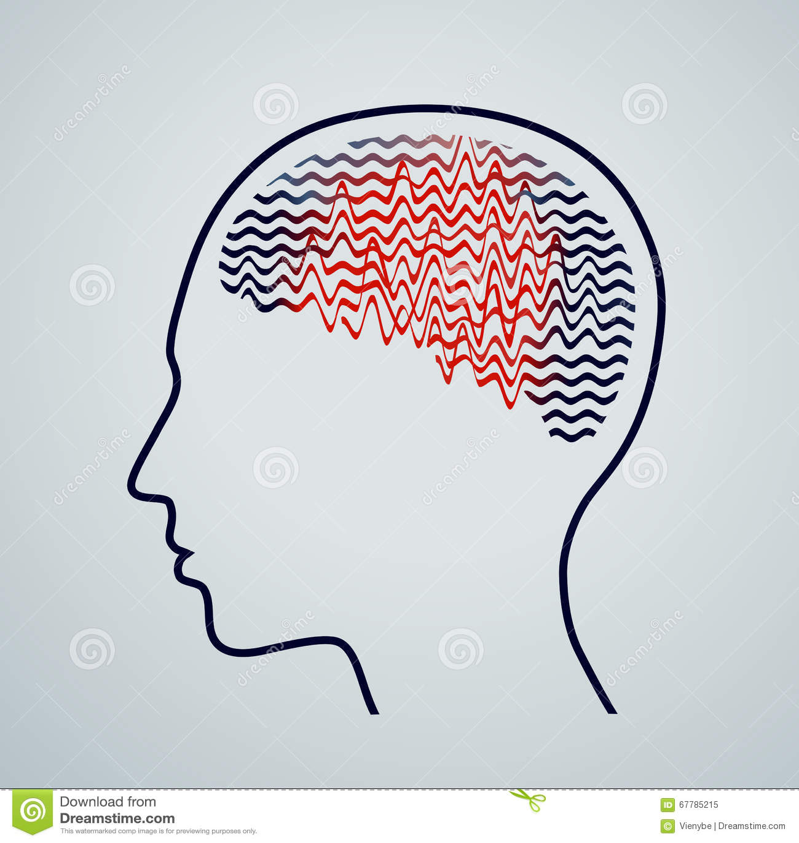 Menselijke hersenen met epilepsieactiviteit, vectorillustratie