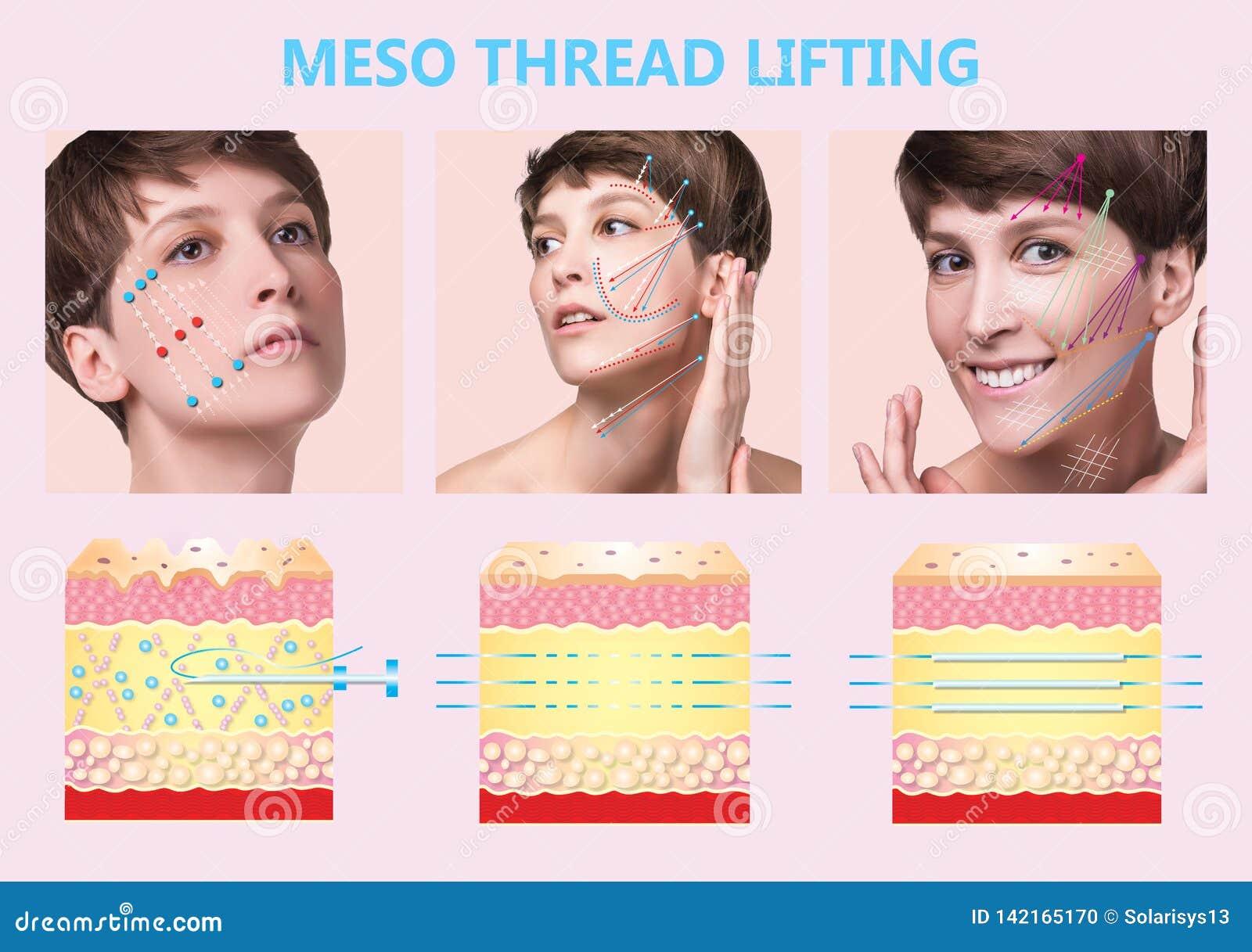 Meso подъем потока Молодая женщина с чистой свежей кожей красивейшая женщина Сторона и шея