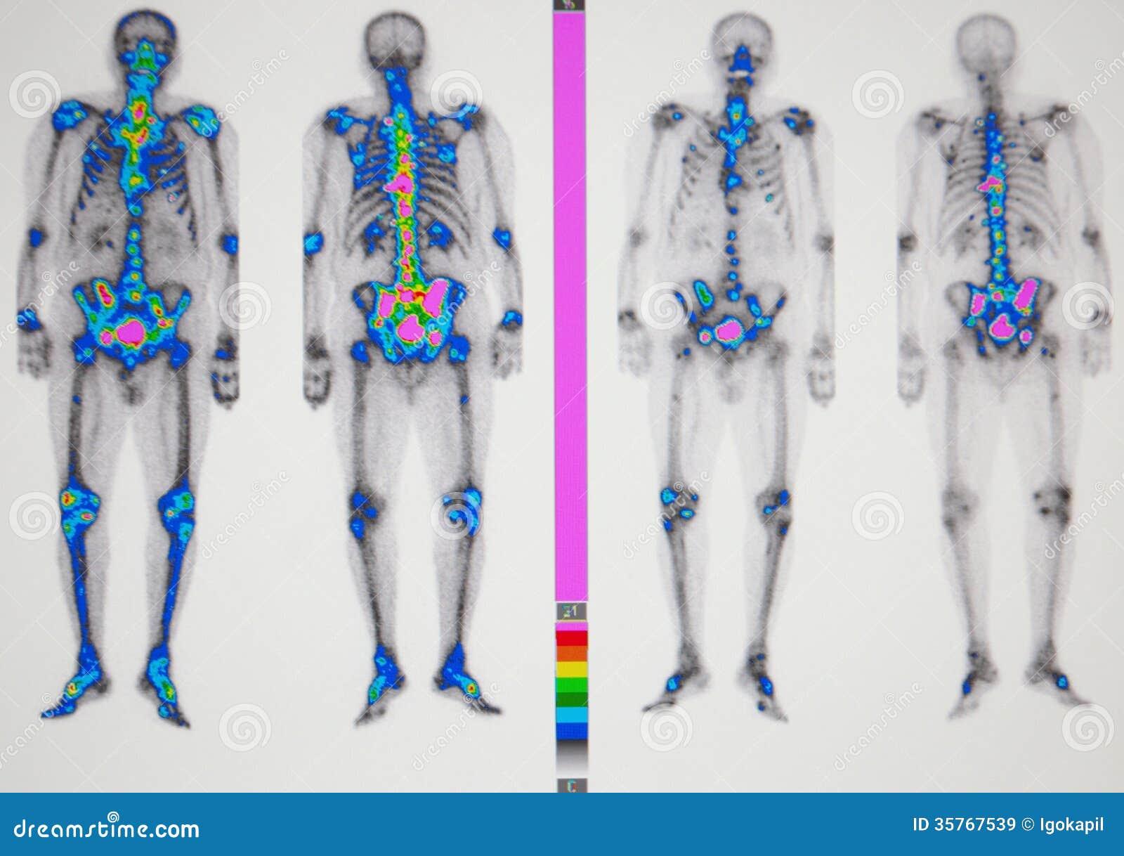 cancer de prostata huesos)