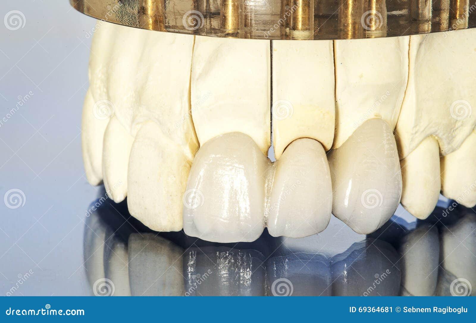 Metal bezpłatne ceramiczne stomatologiczne korony