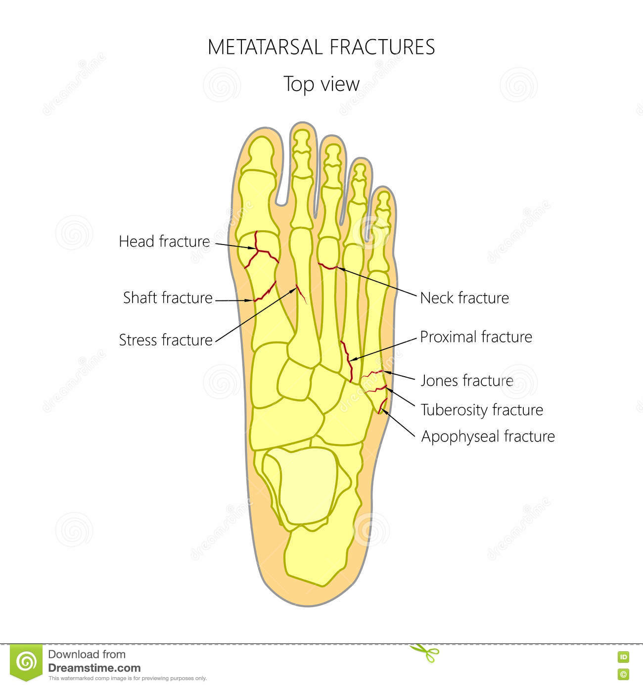 Metatarsal Fractures Stock Vector Illustration Of Fifth 77254124