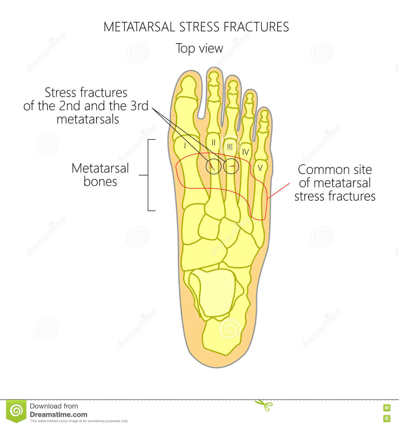 Metatarsal Stress Fractures Stock Vector - Illustration of hurt ...