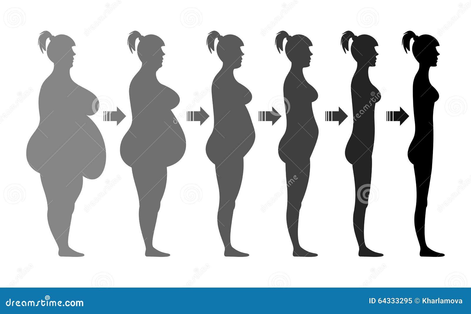centri di perdita di peso in paterson nj