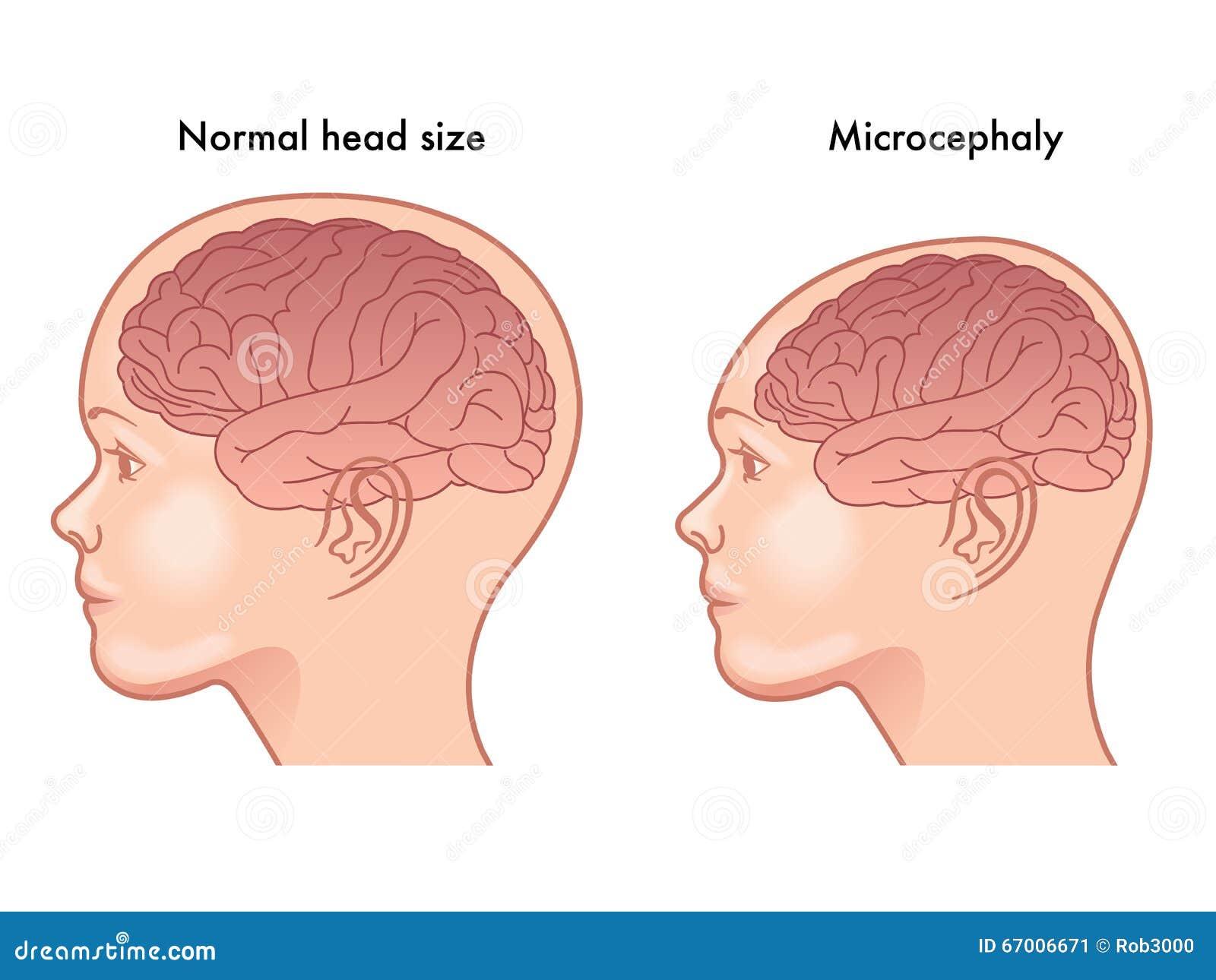 Microcéphalie illustration de vecteur. Illustration du malformation ...