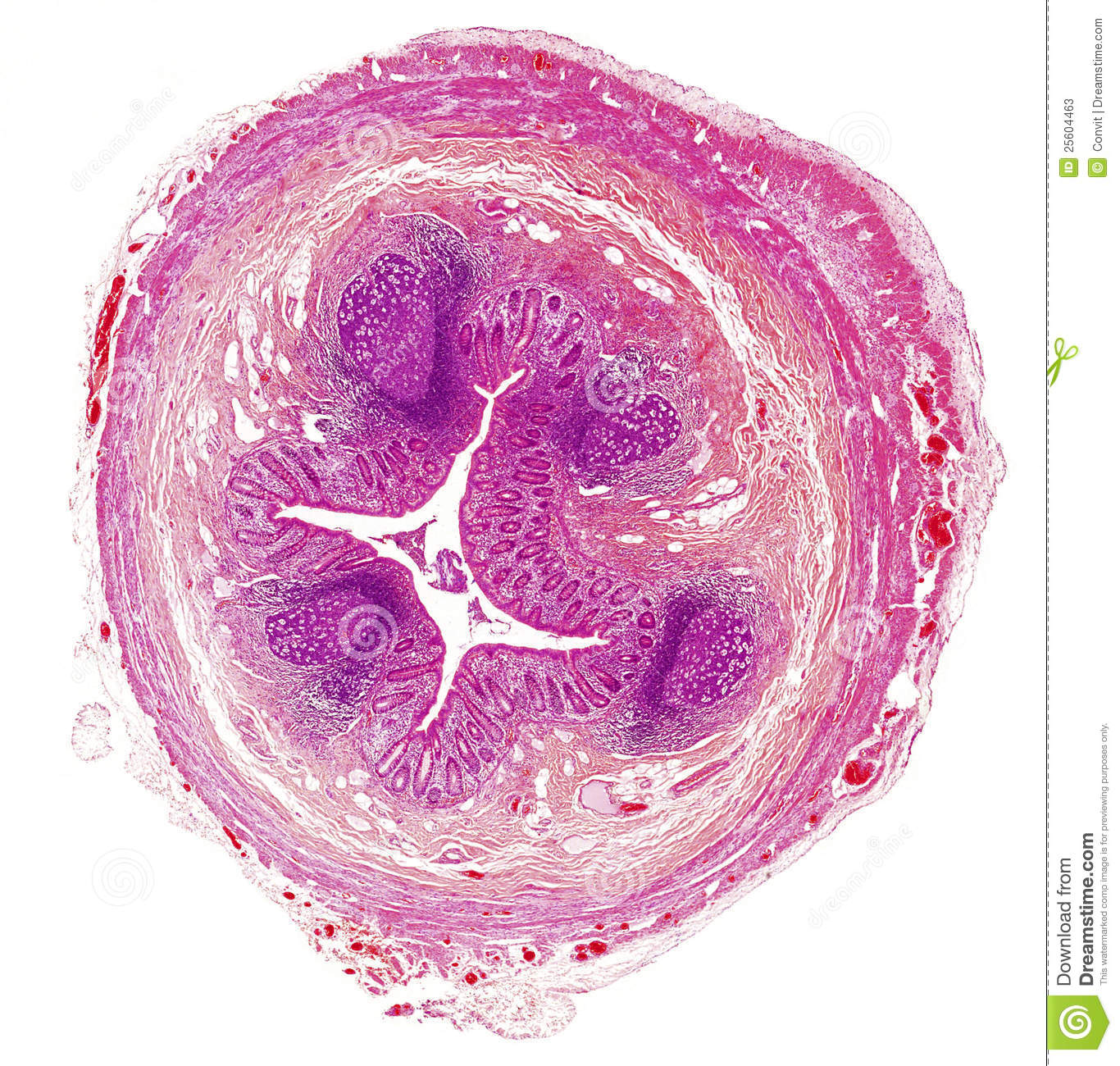 Microscope Picture Of Human Appendix Stock Image Image Of