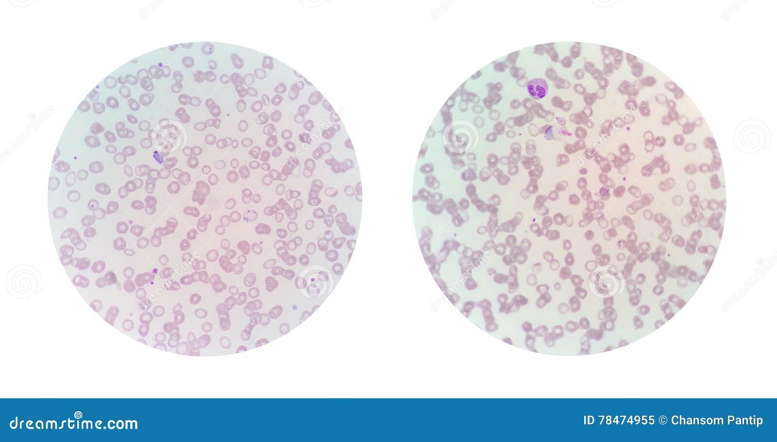 Microscopische meningen van een dunne bloedvlek van malaria besmette pa