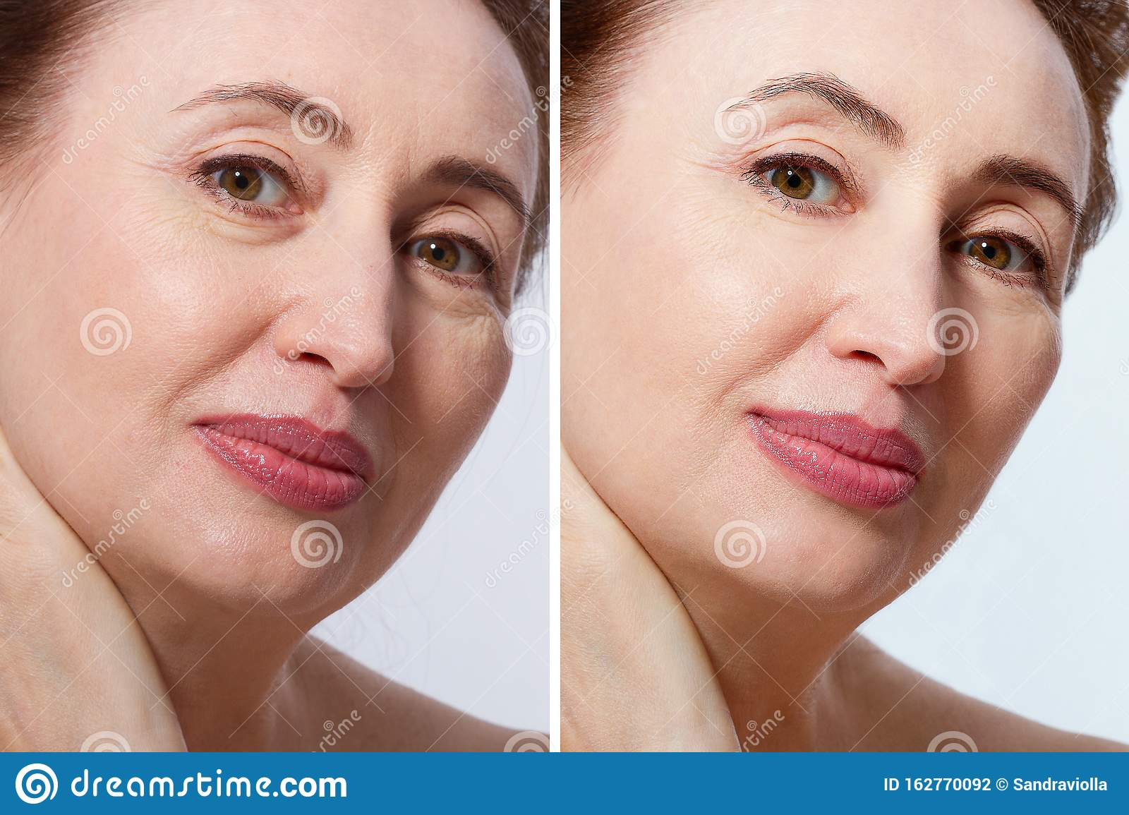 Middle Age Close Up Woman Happy Face Before After Cosmetic