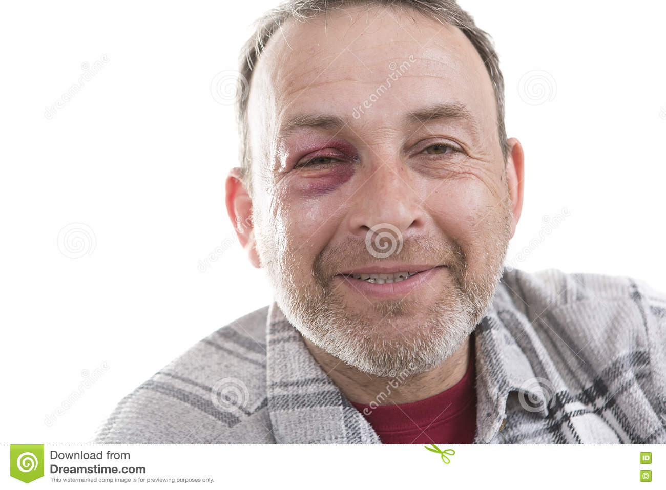 Middle-aged Caucasian male Emotional Portrait with a Real Bruise