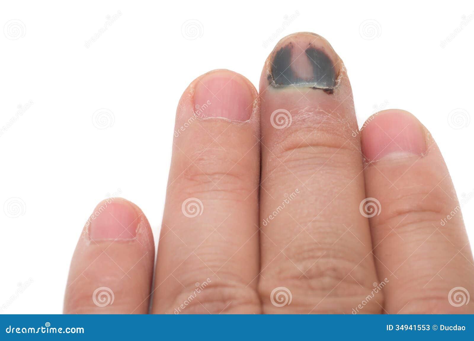 Белое пятно под ногтем на безымянном пальце