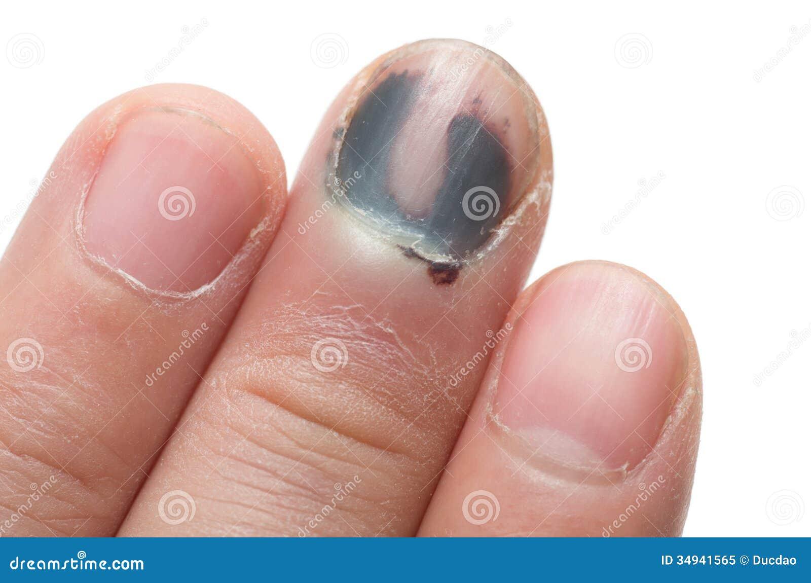 Фото слезающего от удара ногтях