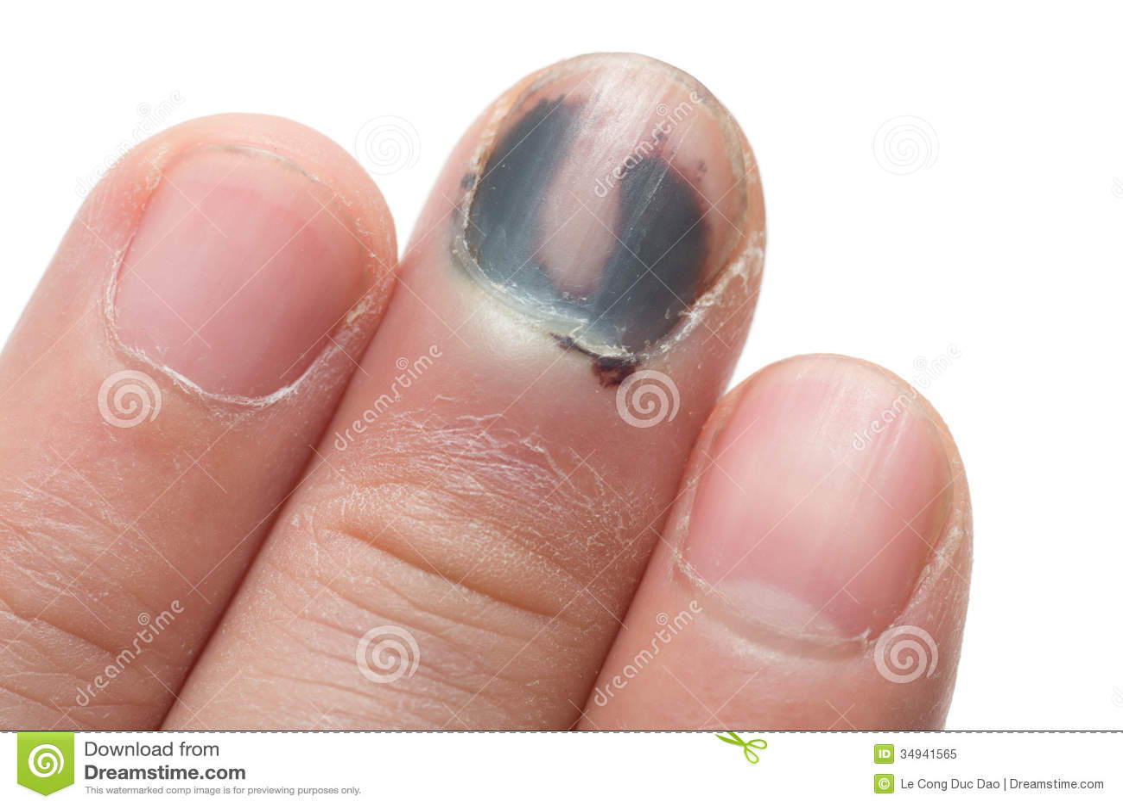 Middle Finger With Bruised Nail Subungual Hematoma On White Background Royalty Free Stock Photo