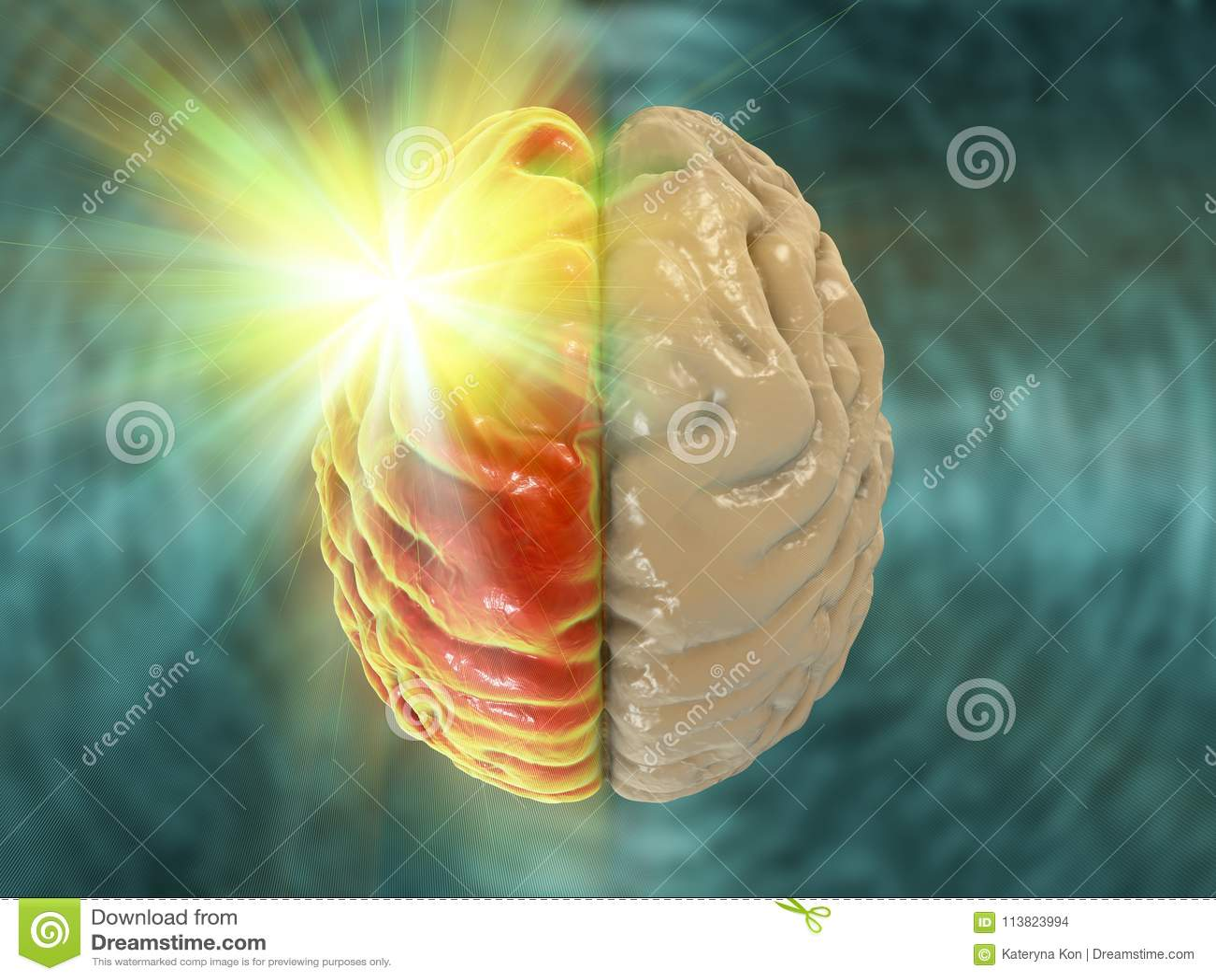 Migrena, hemicrania, medyczny pojęcie