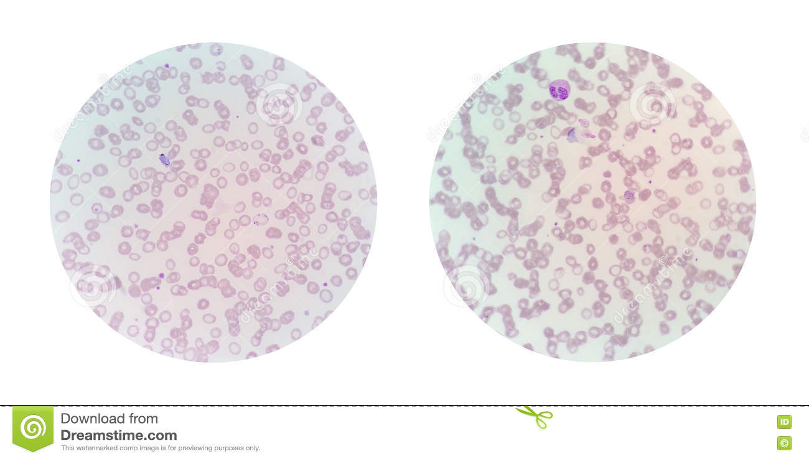 Mikroskopijni widoki cienki krwionośny rozmaz od malarii infekowali pa