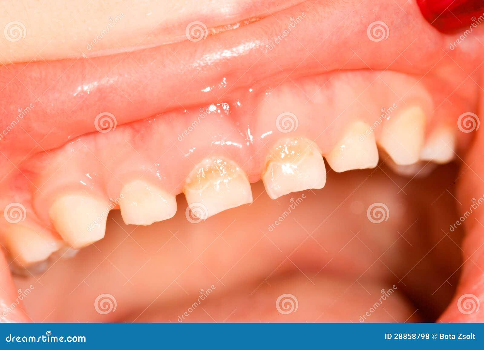 Milchzähne stockfoto. Bild von examine, mündlich, karies - 28858798