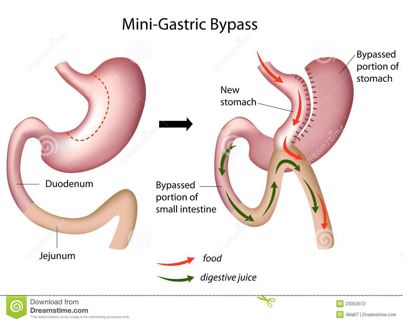 gastric bypass surgery 2016-6-27 read patient information from medlineplus: your diet after gastric bypass surgery.