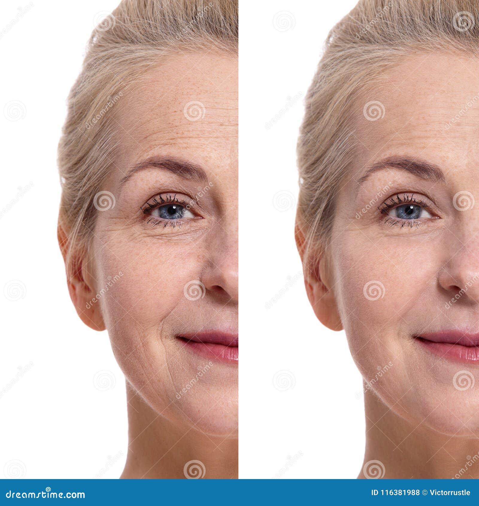Mitt åldrades Oman vänder mot före och efter kosmetiskt tillvägagångssätt begrepp isolerad plastikkirurgiwhite