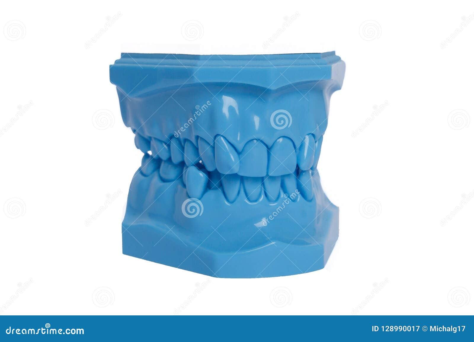 Modèle bleu orthodontique utilisé en art dentaire pour la démonstration et les buts éducatifs